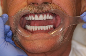 All-on-4-dental-implants-after-1