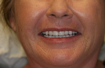 All-on-4-dental-implants-after-3
