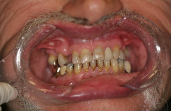 All-on-4-dental-implants-before-1