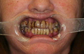 All-on-4-dental-implants-before-3