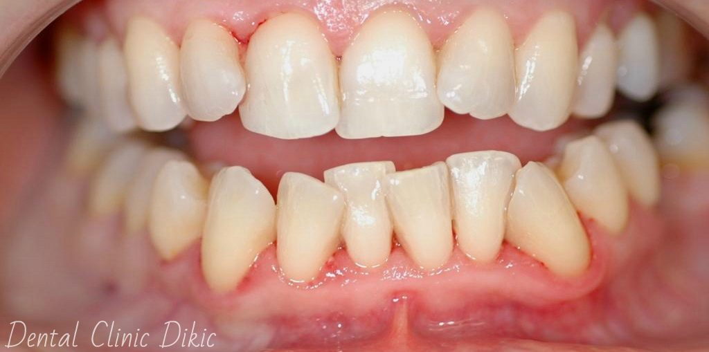 There Are Several Treatments For Gum Disease Including